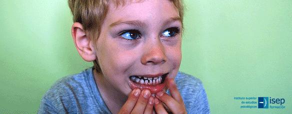 Autorregulación de la zona oral en niños con TEA
